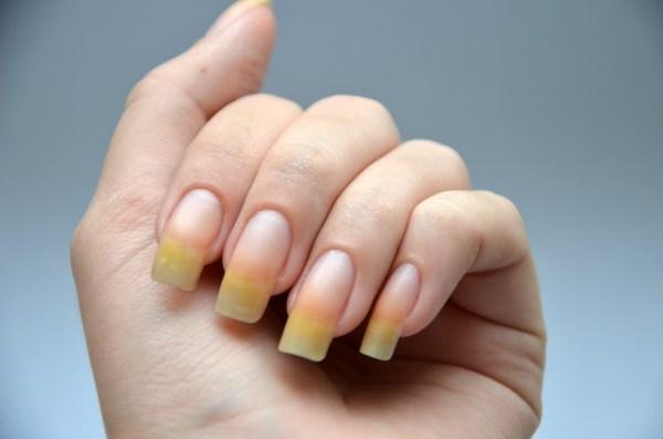 желтые ногти после нанесения лака без основы