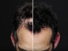 Спрей-маскировка или «временные волосы» Toppik Hair Building Fibers